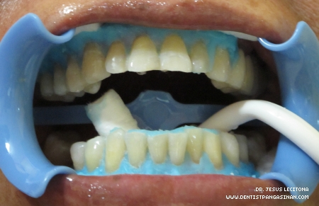 Affordable Teeth Whitening in Rosales