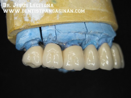 Buccal view of tilite bridge, fixed movable component on the distal of the matrix - dentistpangasinan.com