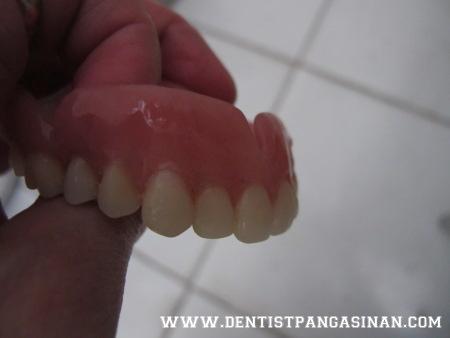 Processed denture